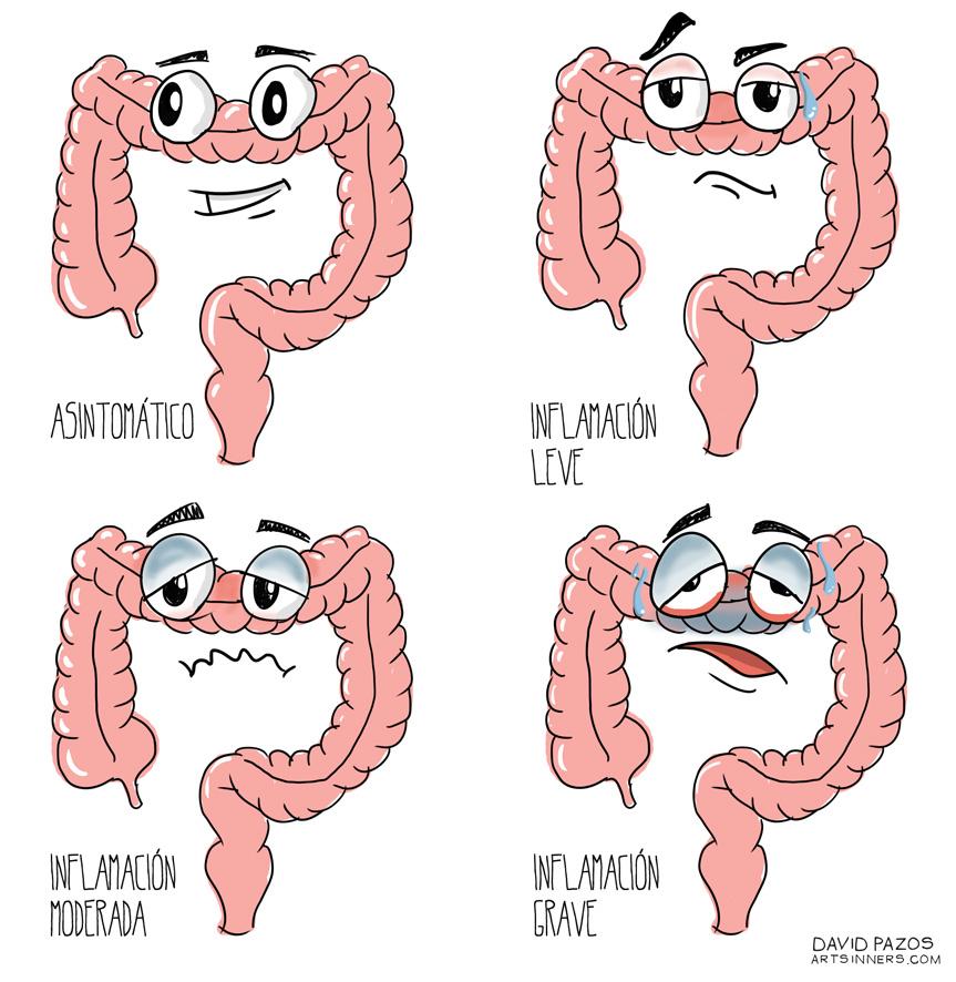 Tipos De Enfermedad G Educainflamatoria Enfermedad Inflamatoria Intestinal Crohn Y Colitis Ulcerosa